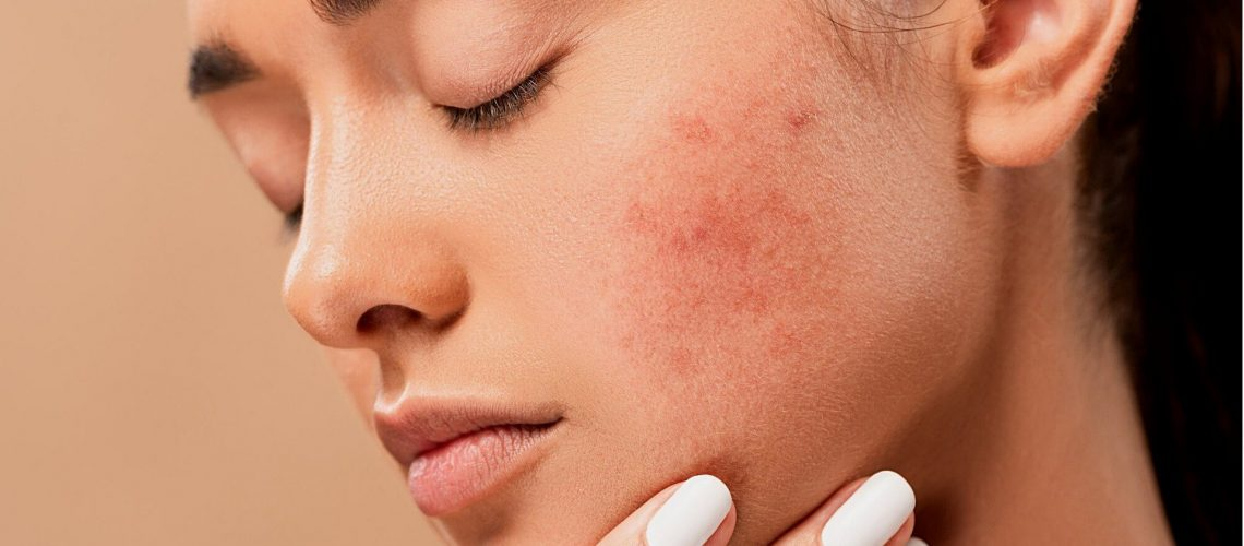 What Lies Inside Our Pimples?