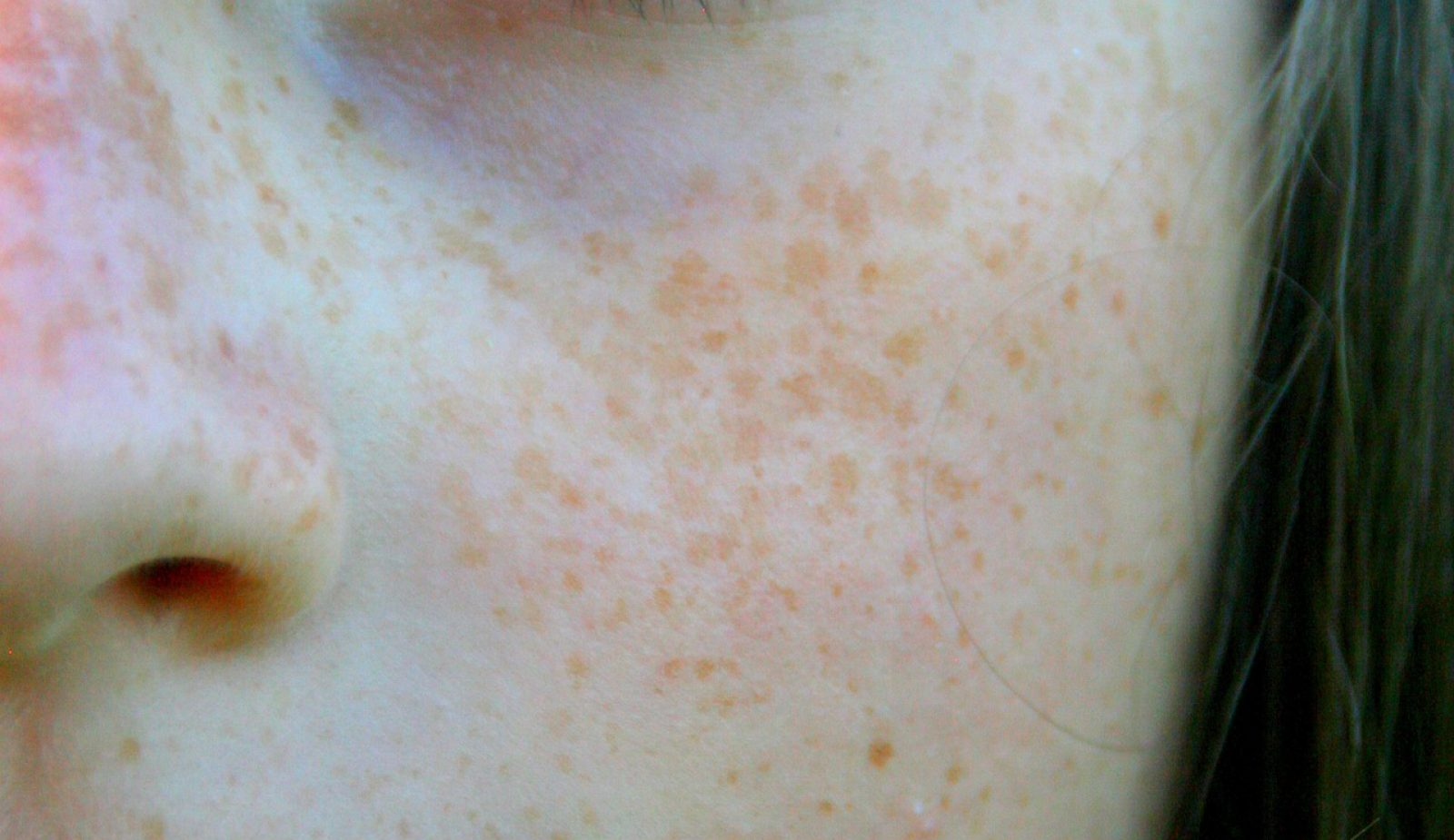 Are My Freckles an Indicator of Skin Cancer?