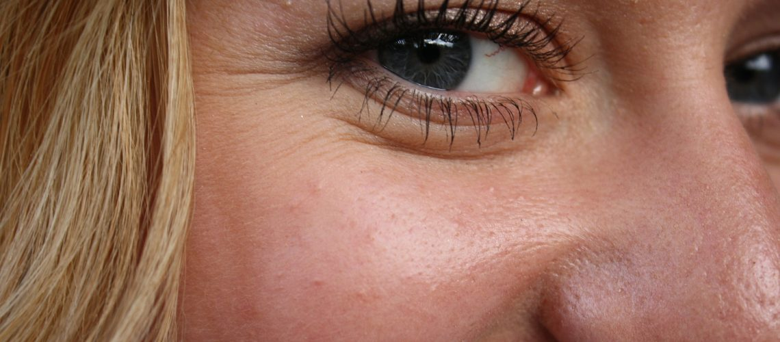 How to Prevent Premature Skin Aging