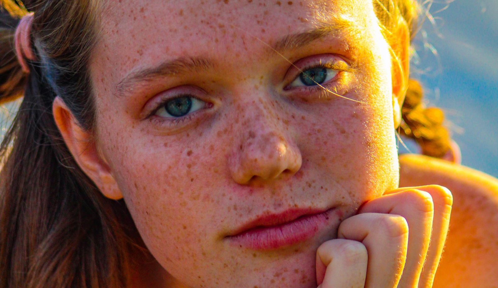 Everything You Need to Know About Freckles