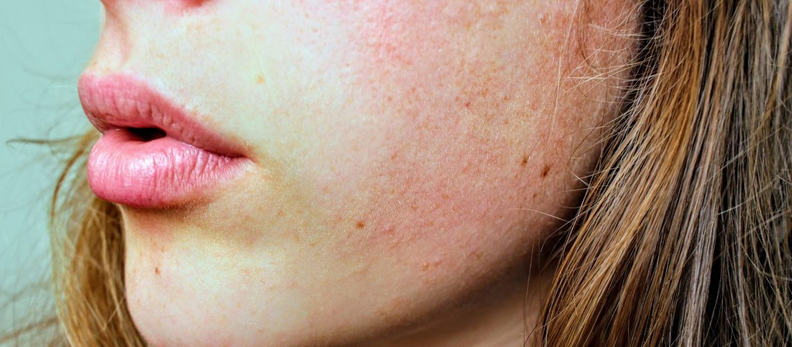 Easy Ways to Treat Dry Skin on your Face