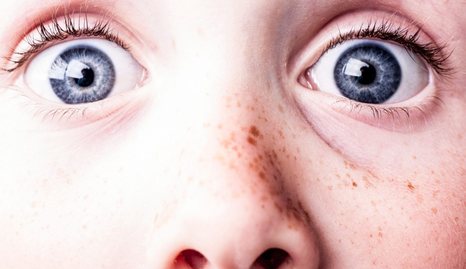How to Tell the Difference between Sunspots and Freckles
